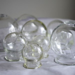 Margarita's cups used in cupping techniques