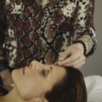 Photo of Margarita administering accupuncture