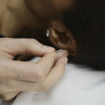 Photo of Margarita administering ear accupuncture